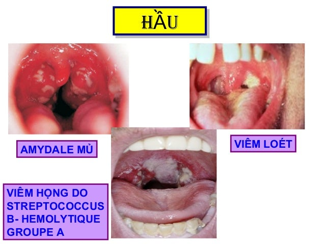 H UẦH UẦ AMYDALE MỦ VIÊM LOÉT VIÊM HỌNG DO STREPTOCOCCUS Β- HEMOLYTIQUE GROUPE A
