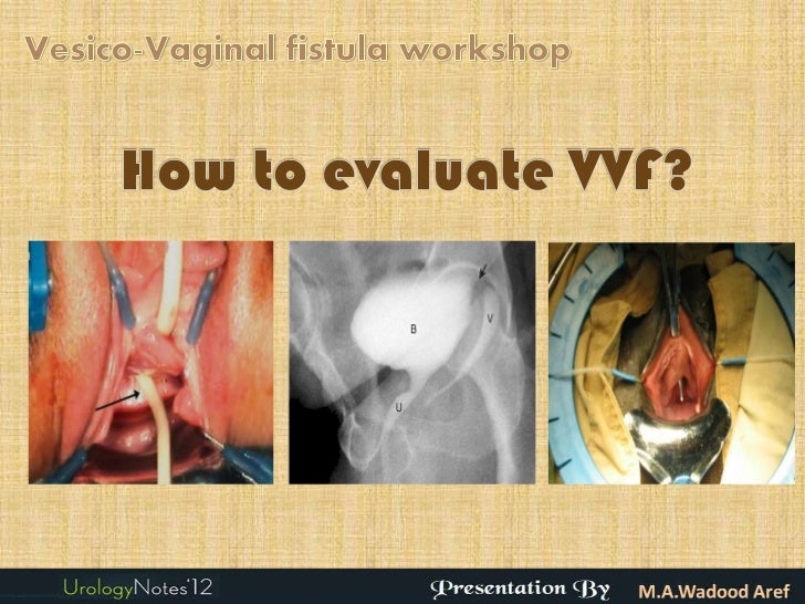 Introduction                   Vesicovaginal fistula (VVF) are the most common  acquired fistula of the urinary tract. ...