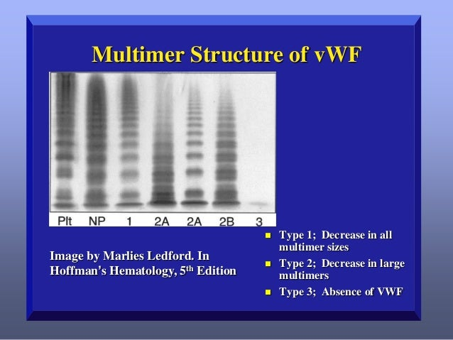VWD: Type 1   Most common form – Approximately 75%-80% of VWD patients – Generally mild to moderate    Characterized by ...