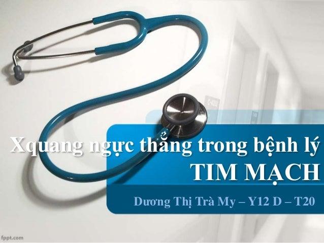 Xquang ngực thẳng trong bệnh lý TIM MẠCH Dương Thị Trà My – Y12 D – T20