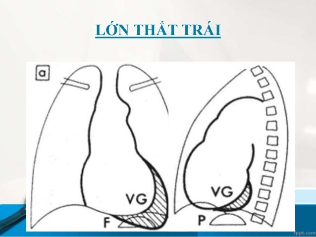 PHÂN BIỆT ĐMP - TMP Động mạch Phổi • Hội tụ ở rốn phổi • Đi kèm phế qản • V.Trên  h. đứng • V.dưới  hướng đứng Tĩnh mạch...