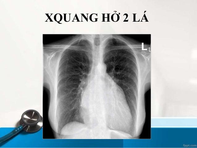 Bệnh nhân Nam 67 tuổi nhập viện vì khó thở. Tiền căn suy tim T, THA. Khám lâm sàng ghi nhận ran nổ ở 2 phổi. OAP VIÊM PHỔI