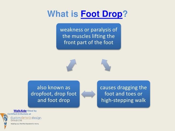 Walkaide Breakthrough Treatment For Foot Drop