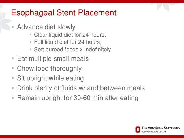 Esophageal Spasm Food Diet