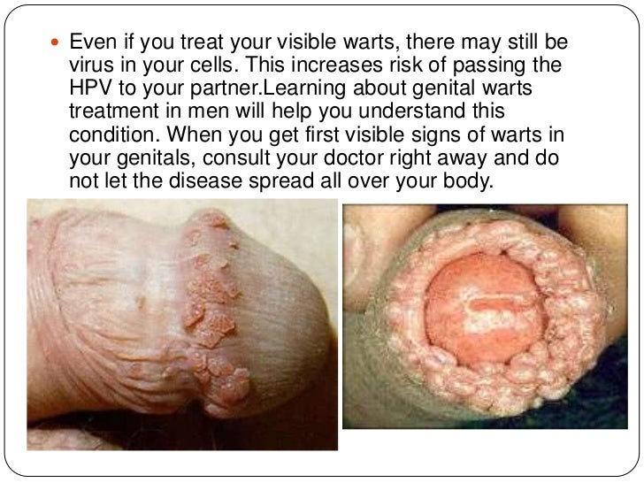 Genital Warts (Human Papillomavirus) - Treatment Overview