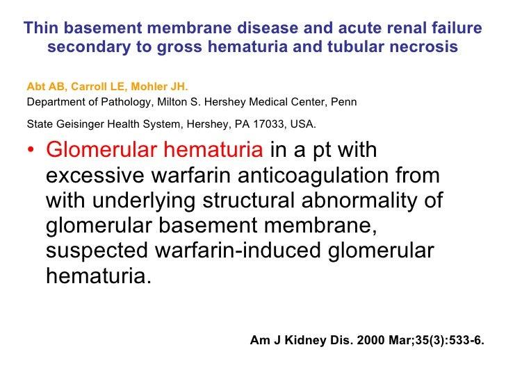 Warfarin related nephropathy; Evidence Based Medicine Slide 3