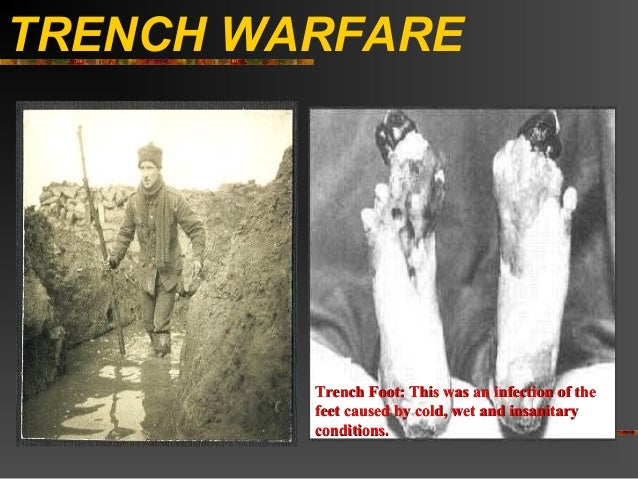 TRENCH WARFARE         Trench Foot: This was an infection of the         feet caused by cold, wet and insanitary         c...
