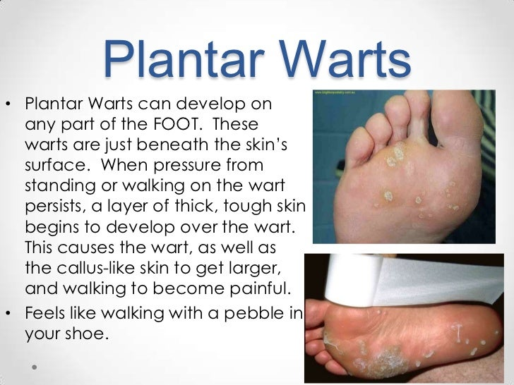 how to avoid grow plantar warts