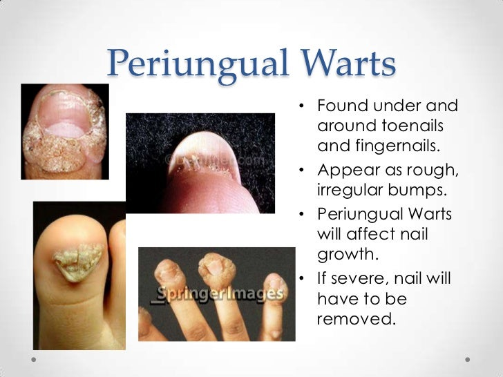 how to get rid of periungual wart