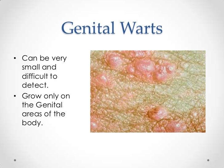 genital warts dating site uk