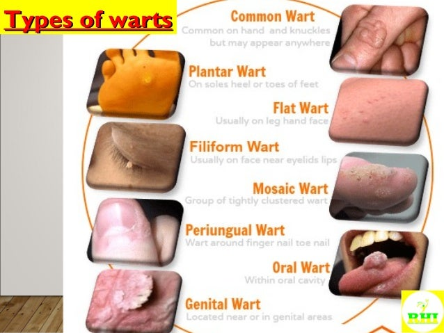 Homeopathic Treatment of WARTS and MOLLUSCUM