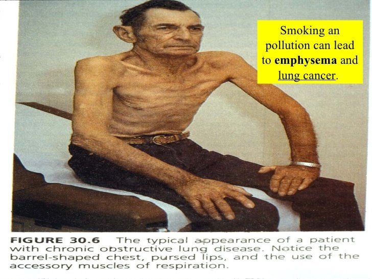 Smoking an pollution can lead to  emphysema  and  lung cancer .