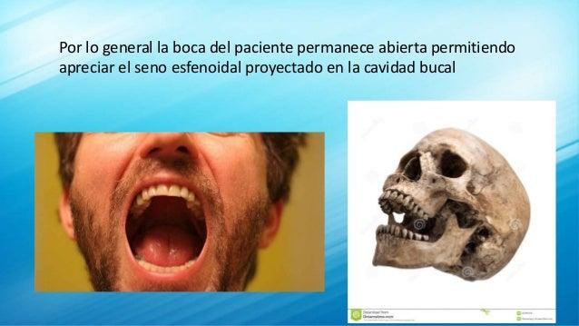 Por lo general la boca del paciente permanece abierta permitiendo apreciar el seno esfenoidal proyectado en la cavidad buc...