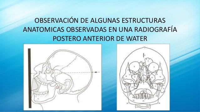 OBSERVACIÓN DE ALGUNAS ESTRUCTURAS ANATOMICAS OBSERVADAS EN UNA RADIOGRAFÍA POSTERO ANTERIOR DE WATER