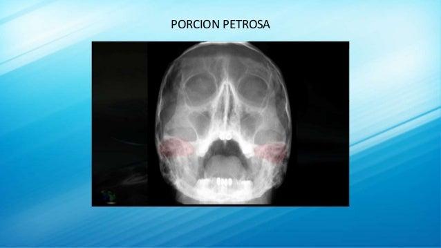 PORCION PETROSA