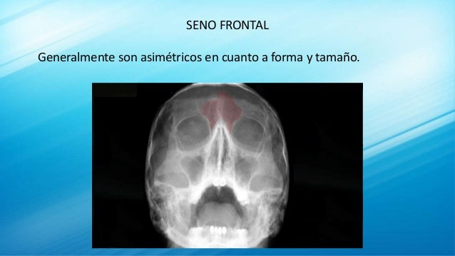 SENO FRONTAL Generalmente son asimétricos en cuanto a forma y tamaño.