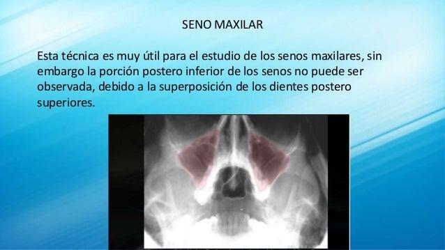 SENO MAXILAR Esta técnica es muy útil para el estudio de los senos maxilares, sin embargo la porción postero inferior de l...