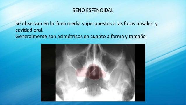 SENO ESFENOIDAL Se observan en la línea media superpuestos a las fosas nasales y cavidad oral. Generalmente son asimétrico...