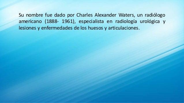 Su nombre fue dado por Charles Alexander Waters, un radiólogo americano (1888- 1961), especialista en radiología urológica...
