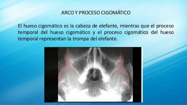 Radiología Tecnica de Waters