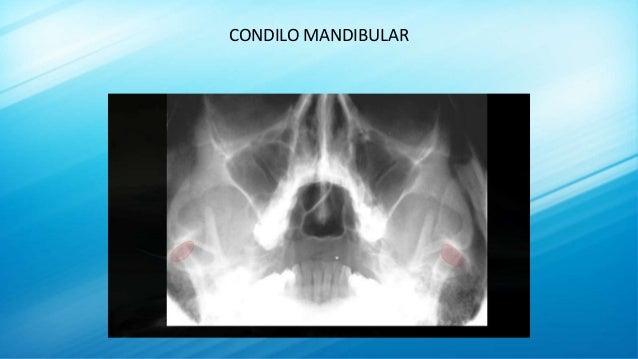 CONDILO MANDIBULAR
