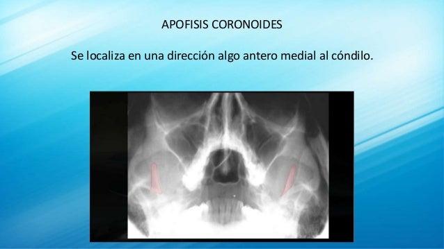 APOFISIS CORONOIDES Se localiza en una dirección algo antero medial al cóndilo.