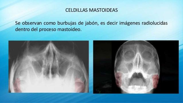 CELDILLAS MASTOIDEAS Se observan como burbujas de jabón, es decir imágenes radiolucidas dentro del proceso mastoideo.