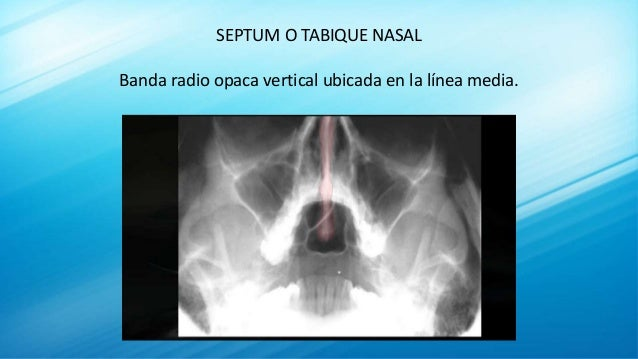 SEPTUM O TABIQUE NASAL Banda radio opaca vertical ubicada en la línea media.