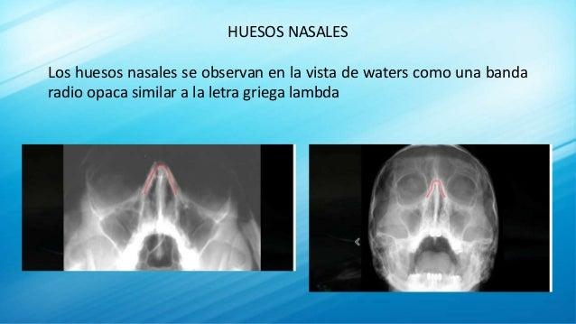 HUESOS NASALES Los huesos nasales se observan en la vista de waters como una banda radio opaca similar a la letra griega l...