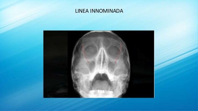 LINEA INNOMINADA