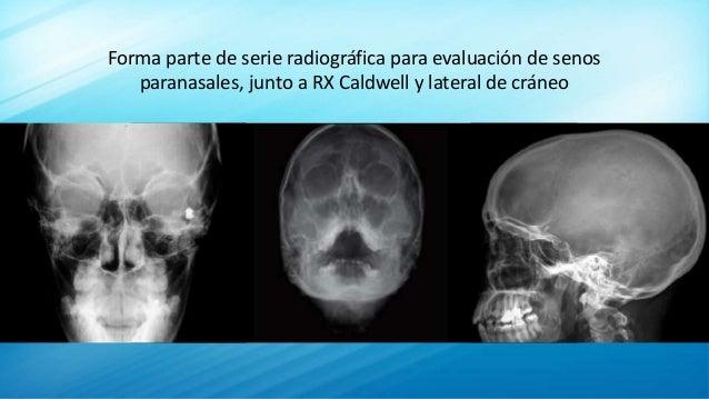Forma parte de serie radiográfica para evaluación de senos paranasales, junto a RX Caldwell y lateral de cráneo