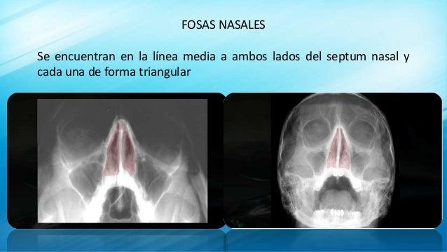 FOSAS NASALES Se encuentran en la línea media a ambos lados del septum nasal y cada una de forma triangular