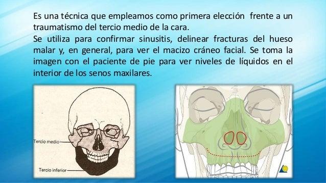Es una técnica que empleamos como primera elección frente a un traumatismo del tercio medio de la cara. Se utiliza para co...
