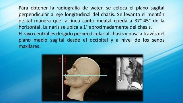 Para obtener la radiografía de water, se coloca el plano sagital perpendicular al eje longitudinal del chasis. Se levanta ...