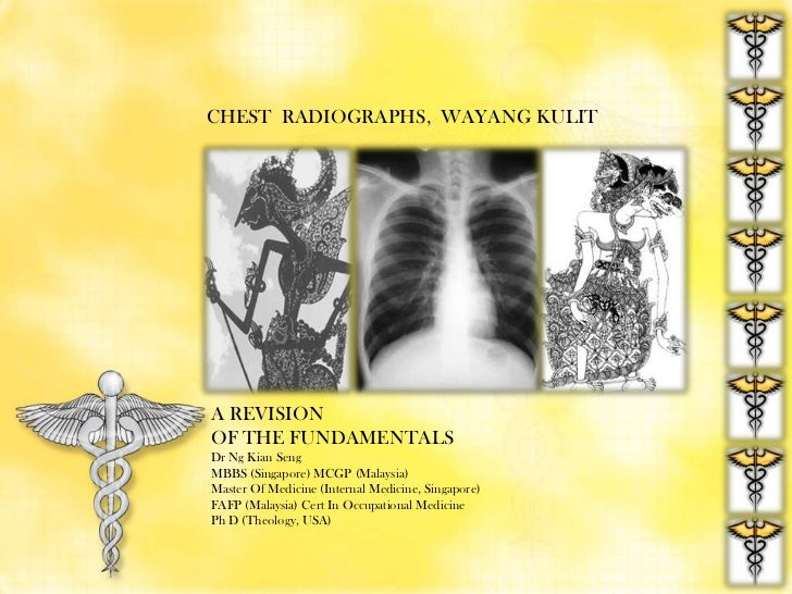 CHEST  RADIOGRAPHS,  WAYANG KULIT<br />A REVISION<br />OF THE FUNDAMENTALS<br />Dr Ng Kian Seng<br />MBBS (Singapore) MCGP...