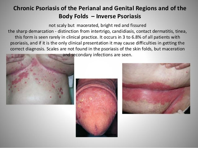 psoriasis female genital area