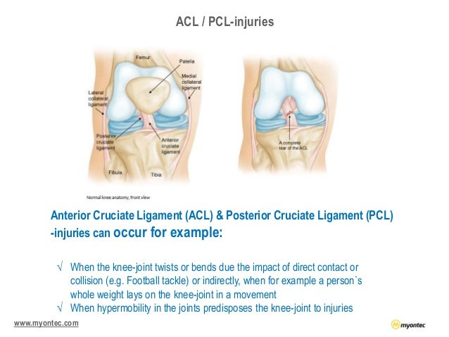 Wearable emg technology as a tool for acl or pcl operated football pl…
