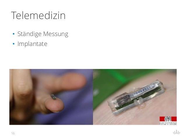 Telemedizin • Ständige Messung • Implantate 16