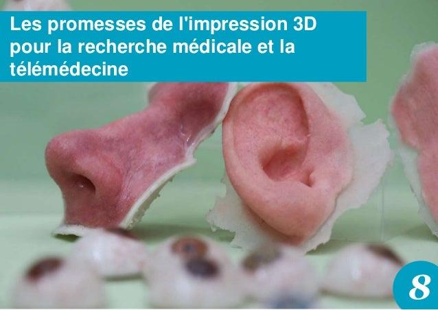 8 Les promesses de l'impression 3D pour la recherche médicale et la télémédecine