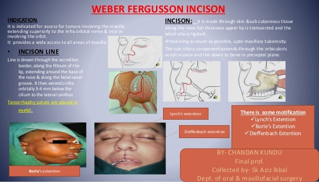WEBER FERGUSSON INCISON INDICATION: It is indicated for access for tumors involving the maxilla extending superiorly to th...