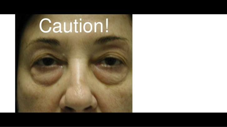 Filler Injections: Correcting The Tear Trough Deformity With