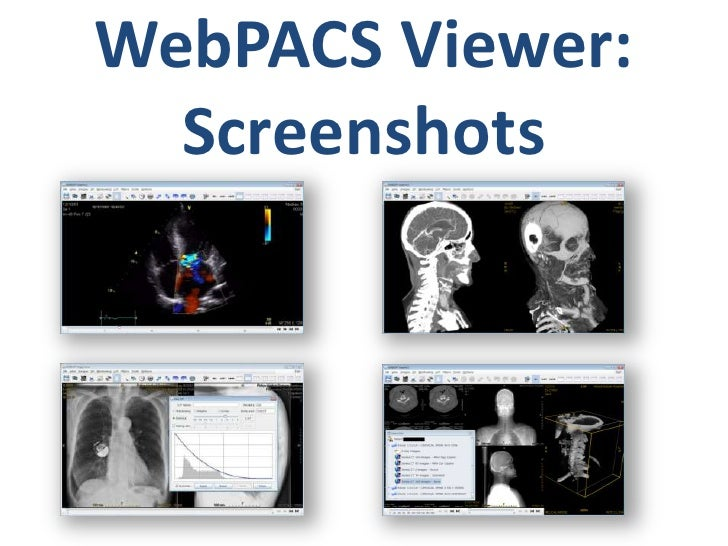 WebPACS Viewer:Screenshots<br />
