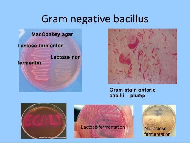 Random hepatocellular injury Equine herpes virus infection