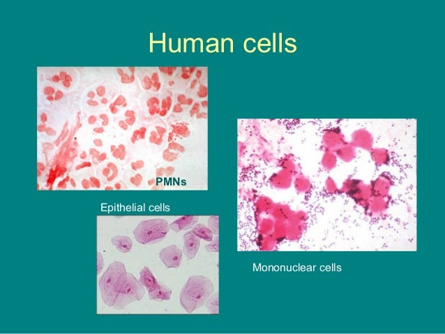 gram stain on human cells