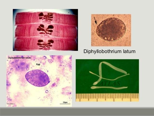 Taenia solium Proglottis – fewer uterine branches (<=12 uterine branches) Scolex - Ring of thorns