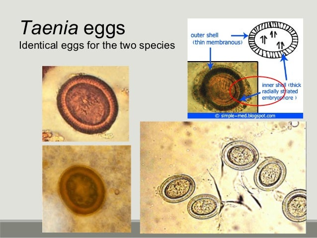 Hymenolepis diminuta Uncommon tapeworm Big egg @ 80 microns in diameter