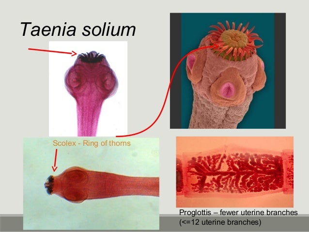 Relative size of Helminth eggs http://www2.bc.cc.ca.us/bio16/pal/Parasitology.htm