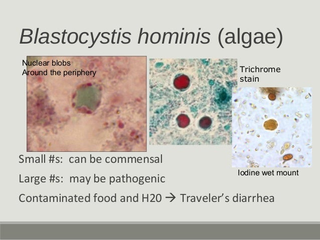 Blastocystis hominis (algae) Small #s: can be commensal Large #s: may be pathogenic Contaminated food and H20  Traveler's...