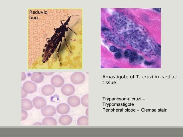 Trypanosoma cruzi – Trypomastigote Peripheral blood – Giemsa stain Reduvid bug Amastigote of T. cruzi in cardiac tissue