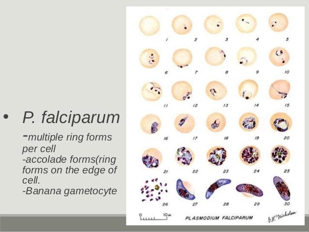 Malignant tertian malaria Black water fever P. falciparum High % parasitism Accolade form Banana gametocyte